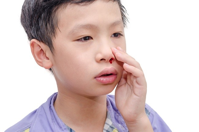 Tetap Tenang dalam Menyikapi Mimisan pada Anak - Alodokter