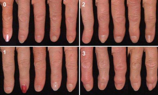 Gambaran grading osteoartritis sendi DIP kedua dekstral. Sumber: anonim, Openi, 2012.