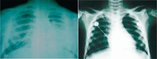 X-ray Croup pra-paska bronkoskopi. Sumber: anonim, Openi, 2009.