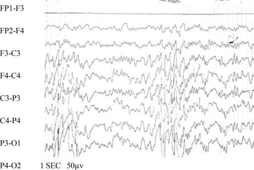 Gambaran EEG Kejang Demam. Sumber: anonim, Openi, 2014.