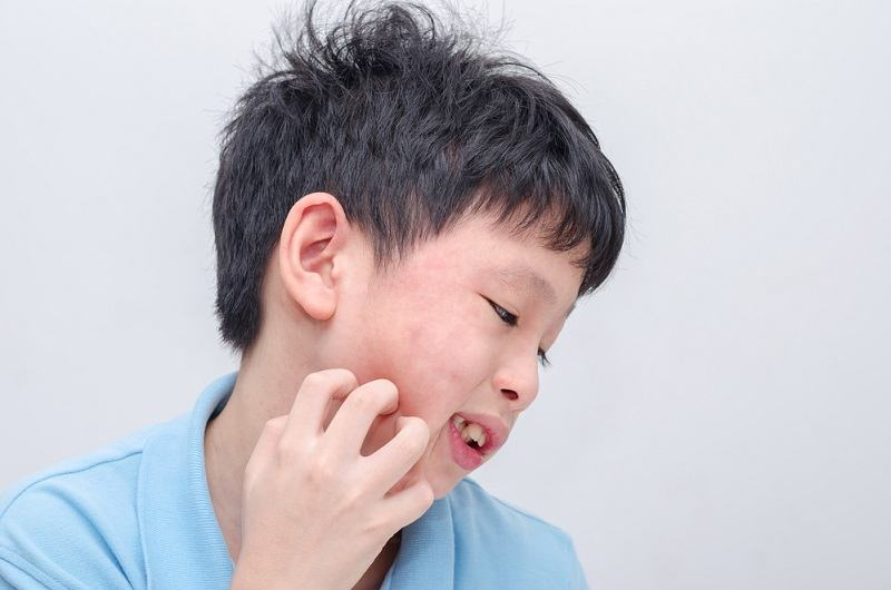 Tergolong Langka, Ketahui Penyebab dan Gejala Alergi Air - Alodokter