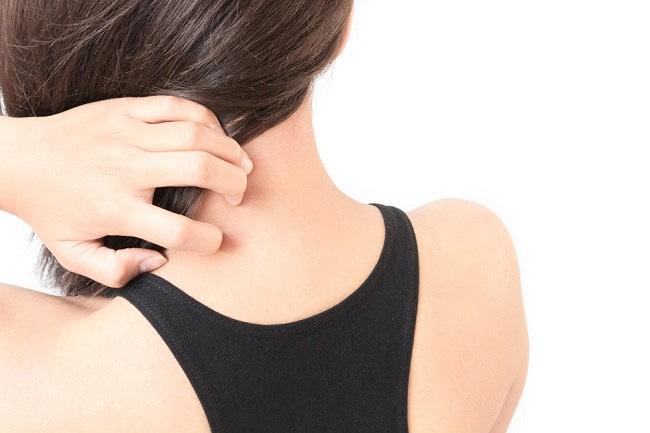 Mengenali Gejala Alergi Panas dan Cara Mencegahnya - Alodokter