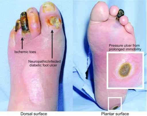 Ulkus diabetes. Sumber: Nunan R, Openi, 2014.