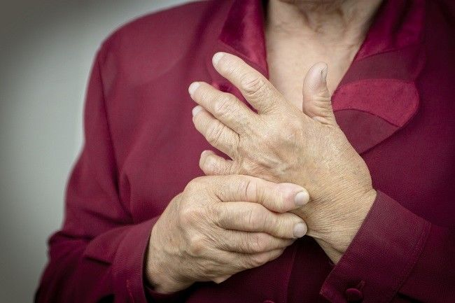 rheumatoid arthritis - Alodokter