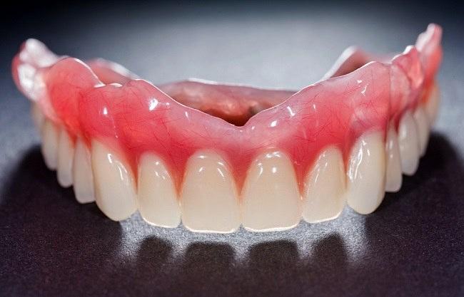 Gigi Palsu Ini Yang Harus Anda Ketahui Alodokter