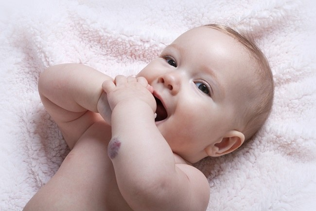 hemangioma child