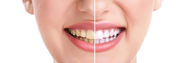 Kenali Apa Itu Pemutihan Gigi - Alodokter