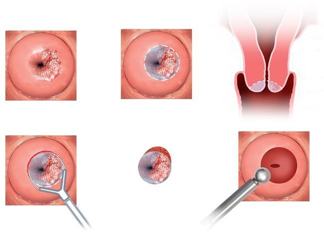 Kanker Serviks - patofisiologi, diagnosis, penatalaksanaan - Alomedika