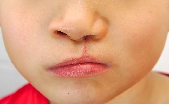 Penyebab dan Pengobatan Bibir Sumbing - Alodokter