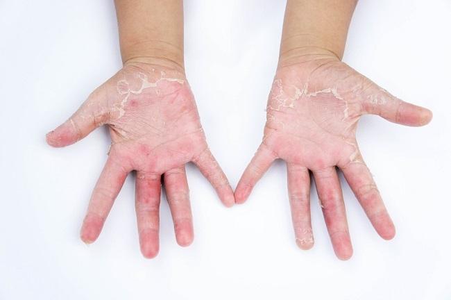 5 Jenis Alergi Kulit Pada Anak Yang Perlu New-Mom Tahu