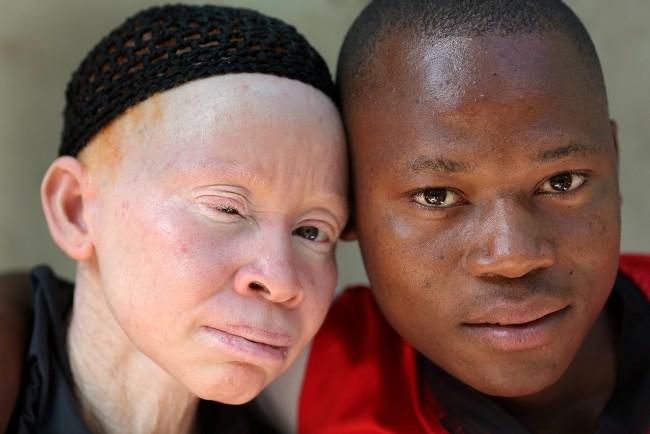 albinisme-alodokter