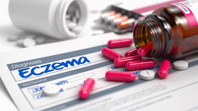 Cari Tahu Jenis dan Obat Eksim Basah yang Tepat - Alodokter