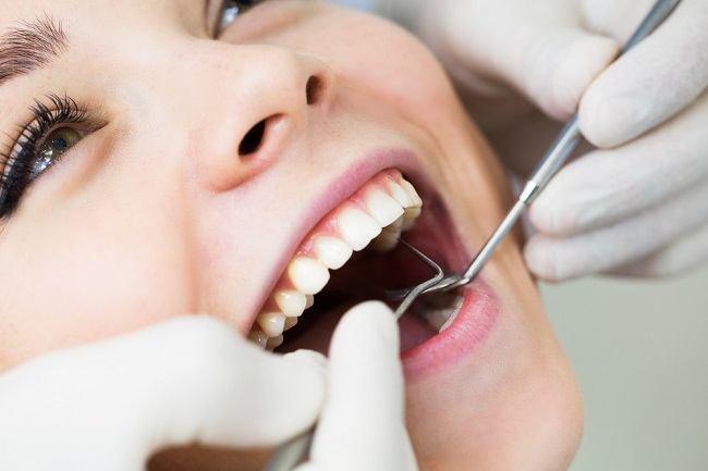 Obat Sakit Gigi Berlubang Untuk Mengatasi Nyeri Alodokter