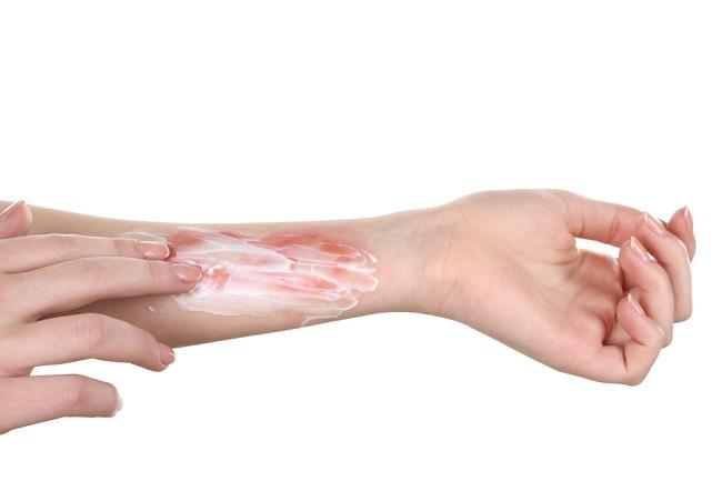 Hasil gambar untuk jenis jenis luka bakar