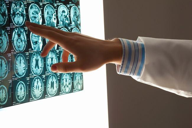 Vitamin untuk Otak yang Wajib Anda Konsumsi - Alodokter