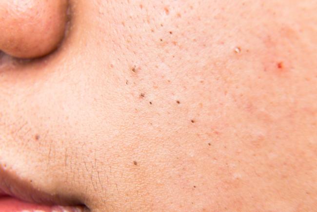 Penyebab Munculnya Komedo Hitam Di Wajah Dan Cara Mengatasinya Alodokter