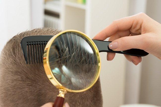 Cara Menghilangkan Kutu Rambut dengan Mudah