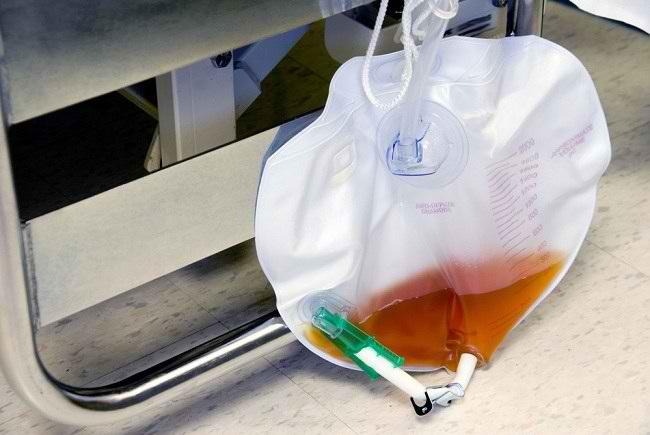 Alat Bantu Kateter Sebagai Solusi Inkontinensia Urine - Alodokter