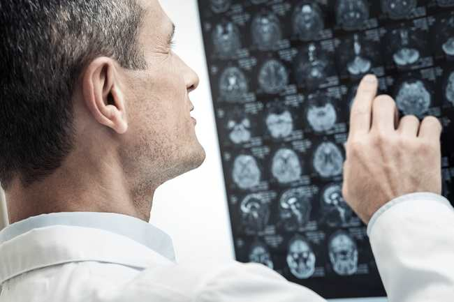 Cari Tahu Peran Dokter Spesialis Neurologi di Sini
