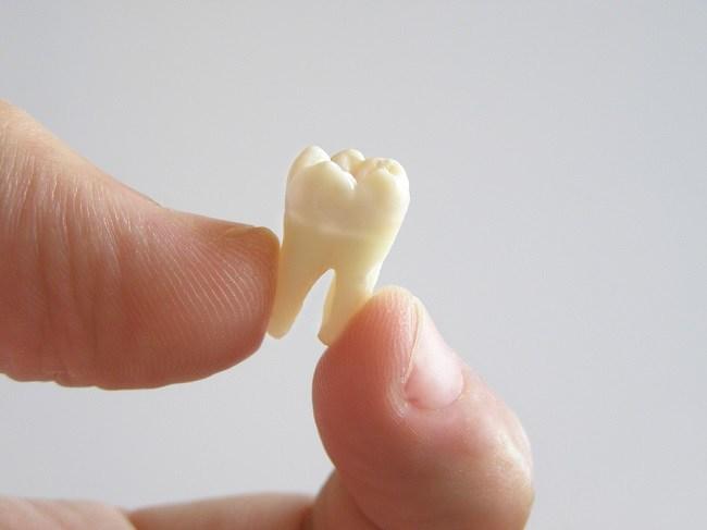 Penyebab Gigi Copot dan Cara Mengatasinya - Alodokter