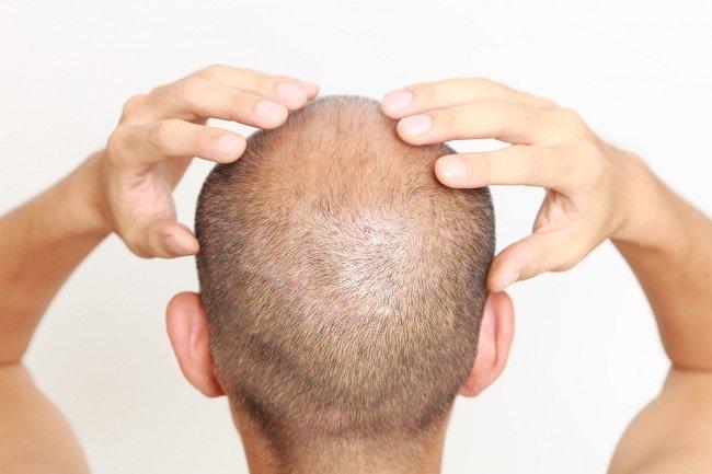 Deretan Penumbuh Rambut Alami yang Bisa Kamu Coba - Alodokter