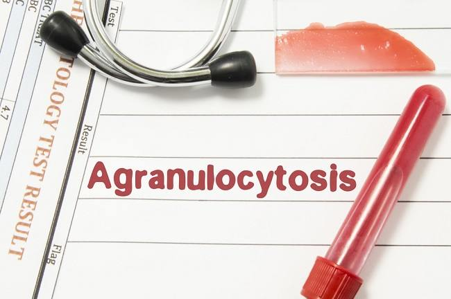 Agranulositosis - alodokter_compress