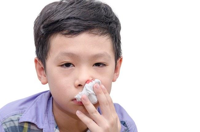 Hati-hati Saat Anak Sering Mimisan - Alodokter