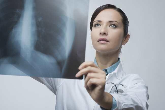 Memahami Peran Dokter Paru di Sini