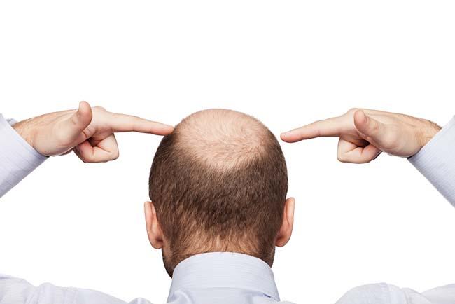 Ketahui Penyebab dan Cara Mencegah Kepala Botak pada Pria