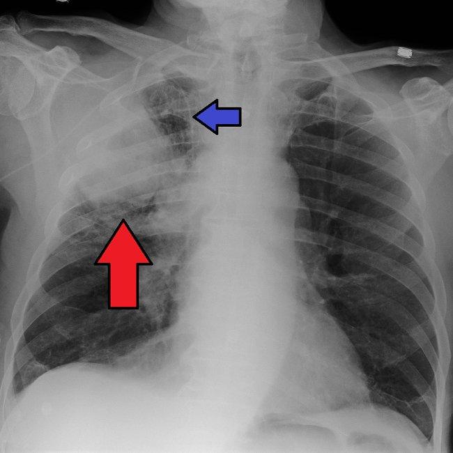Diagnosis Kanker Paru - Alomedika