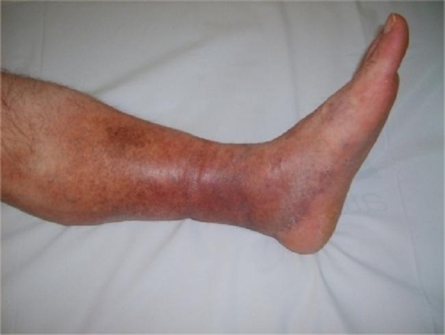 Gambar 1. Deep Vein Thrombosis. Sumber : Seyahi E, Yurdakul S, Openi, 2011.