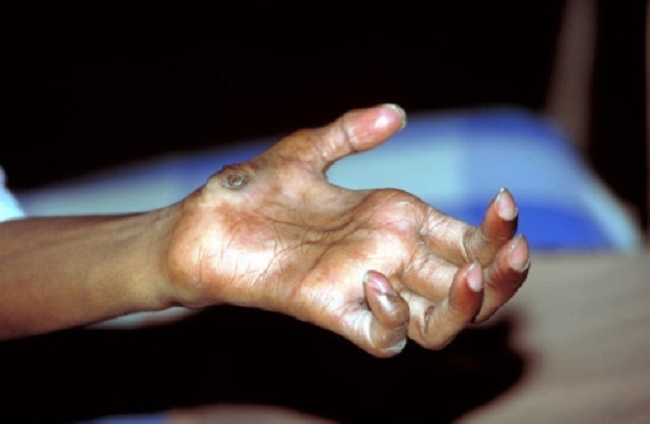 Gambaran Klinis Lepra. Sumber : Rinaldi A, Openi, 2005