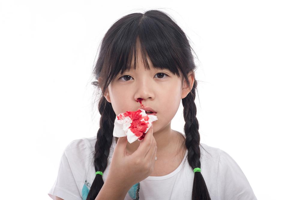 Deretan Penyakit Hidung yang Bisa Menimpa Anda - Alodokter