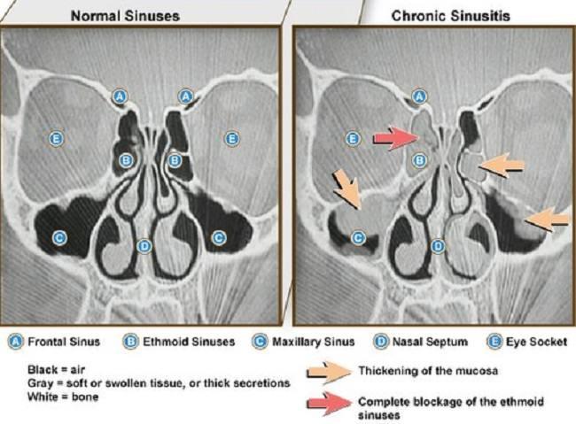 Gambar 1. Perbedaan gambaran CT Scan pada sinus normal dan sinusitis. Sumber : NIAID, Wikimedia Commons, 2011