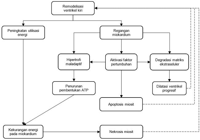 Gambar 1. Patofisiologi remodelisasi ventrikel kiri. Sumber: dr. Sunita, 2018.