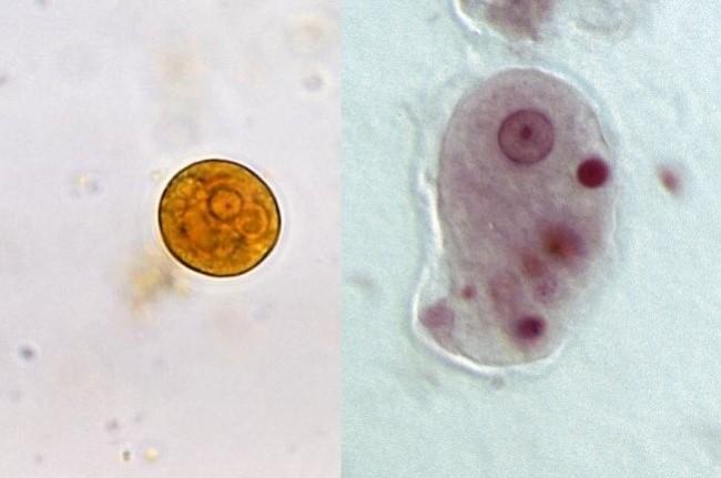 Sumber: Yasser, Wikimedia commons, 2008 (kiri); S Walkowski, Wikimedia commons, 2012 (kanan).