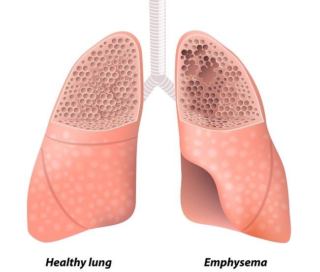 lung emphysema