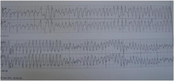 Gambar 1. Gambaran EKG VT polimorfik (Sumber : Openi, 2016)