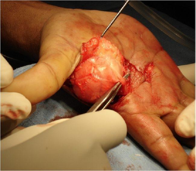 Gambar 1. Lipoma di tangan (Sumber : Openi, 2011)