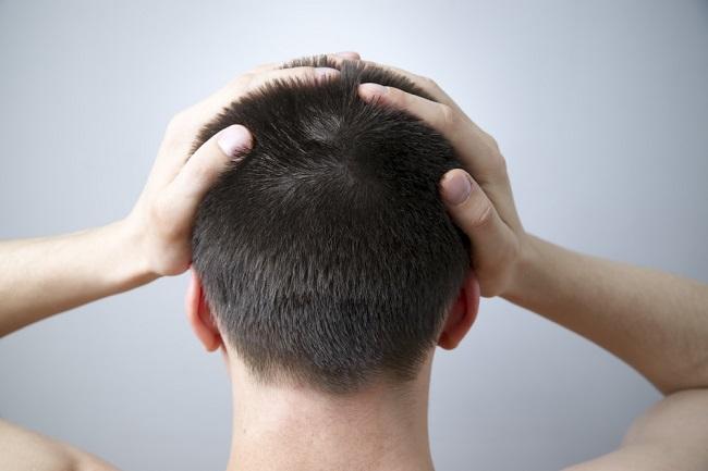 Penyebab Benjolan di Belakang Kepala dan Kapan Harus Waspada