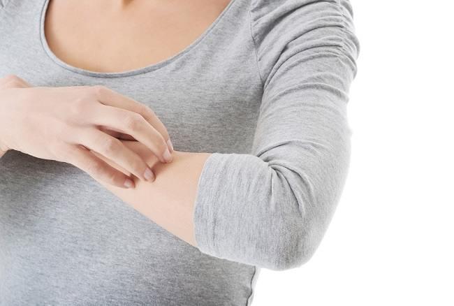 Macam-macam Alergi Kulit yang Perlu Anda Ketahui - Alodokter