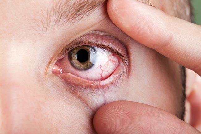 Kotoran Mata, Ketahui Penyebab dan Cara Aman Membersihkannya - Alodokter