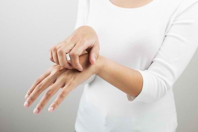 Waspadai Tinea Manum, Infeksi Jamur Tangan yang Menular - Alodokter