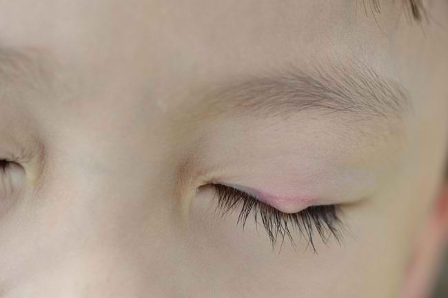 Tips Sederhana Menyembuhkan Benjolan di Kelopak Mata - Alodokter