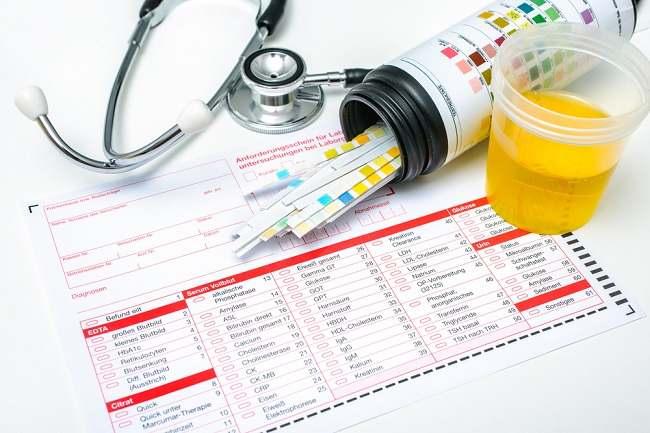 Tes Urine Bisa Dilakukan Untuk Beberapa Hal Ini