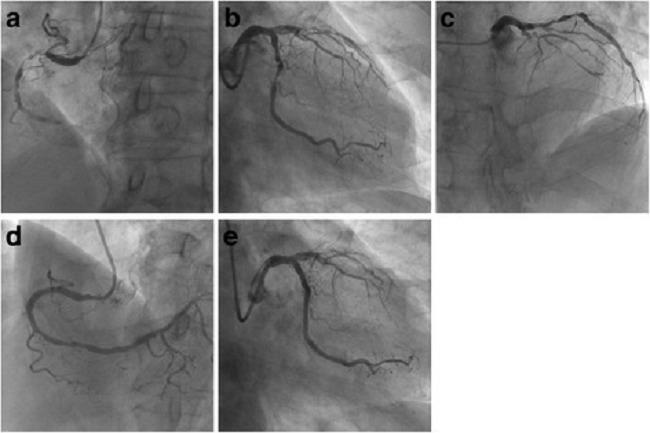 Gambar 1. Angiografi dan PCI pada arteri koroner kanan dan arteri sirkumfleks kiri. (Sumber : Openi, 2016)