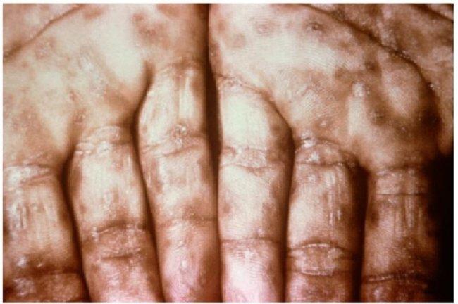 Gambar 1. Sifilis Sekunder (Sumber : Openi, 2015)