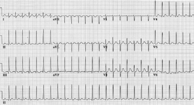 Gambar 1. AV Nodal Reentrant Tachycardia (Sumber: Openi, 2003)