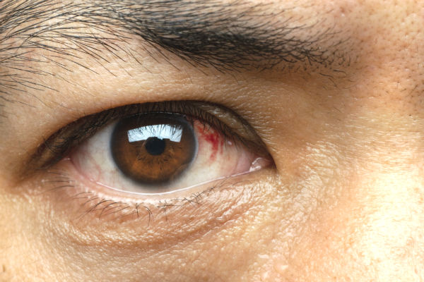 1782 Subconjunctival Hemorrhage rs