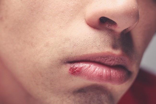 Mengenali Herpes di Bibir dan Mulut serta Cara Mengatasinya - Alodokter